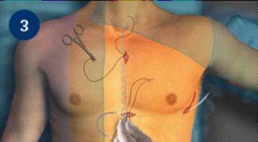 implantation-dsc-3